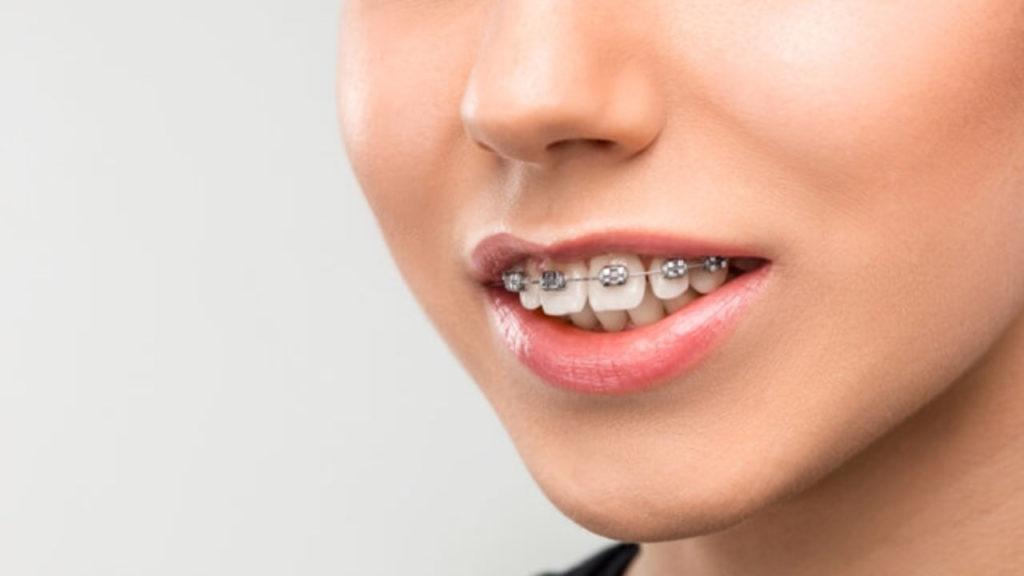 اوربایت دندان