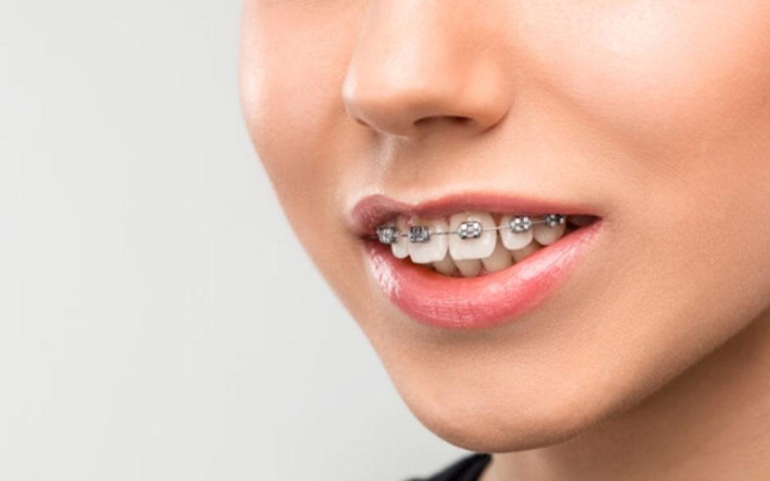 اوربایت دندان چیست و چگونه درمان میشود؟