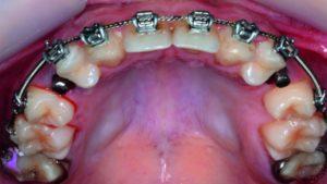 ارتودنسی دندان بالا