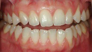 ارتودنسی دندان چه عوارضی دارد