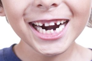 ارتودنسی یک دندان کج