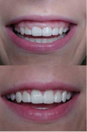 ارتودنسی ژنژیوکتومی یا لبخند لثه ای چیست