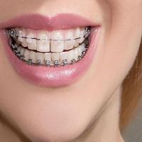 ارتودنسی دندان ایمپلنت شده چگونه انجام می شود؟