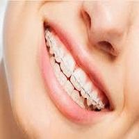 آشنایی کامل با ارتودنسی دندان سرامیکی