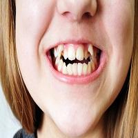 آیا ارتودنسی دندان کج با سایر ارتودنسی ها متفاوت است؟