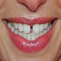 ارتودنسی فاصله دندان جلو به چه معناست؟