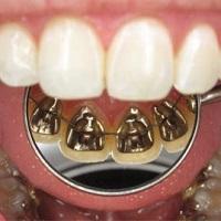ارتودنسی دندان از داخل