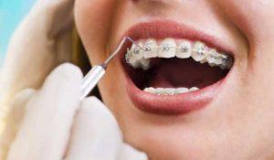 ارتودنسی دندان با کمترین هزینه