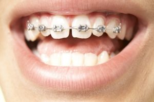 هزینه ارتودنسی ثابت دندان