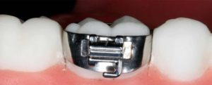 حلقه ارتودنسی-2