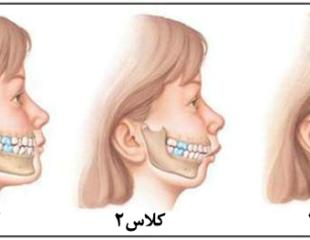 ارتودنسی جراحی فک پایین-1