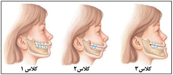 ارتودنسی جراحی فک پایین